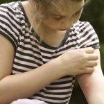 Invazia capuselor – Cum te protejezi de ele si cum trebuie sa procedezi in caz de muscatura